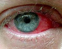 αλλεργική,εαρινή,επιπεφυκίτιδα